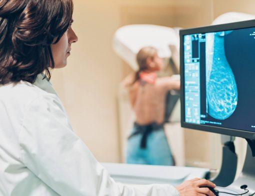 tipos de câncer de mama